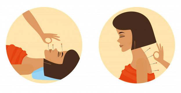 Jak działa akupunktura?